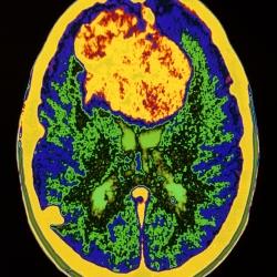 meningioma pic1